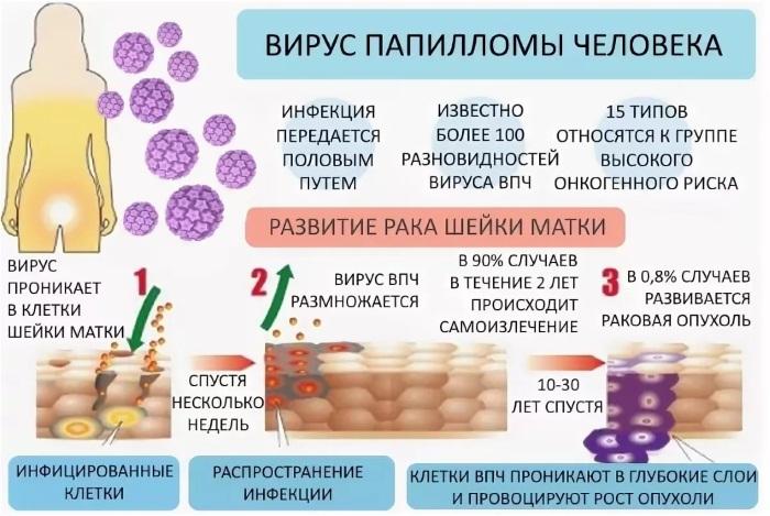 Анализ крови на папилломавирус у женщин, мужчин, детей. Причины ВПЧ инфекции