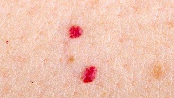 Ангиома кожи. Фото, симптомы и лечение. Народные средства, медикаментозное