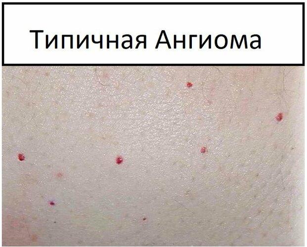 Ангиомы на теле у женщин. Причины появления, лечение и удаление