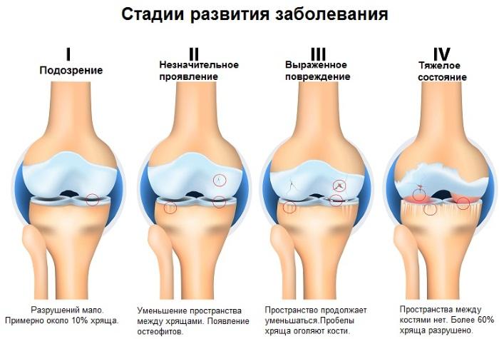 Артроз голеностопного сустава. Симптомы и лечение, средства, упражнения