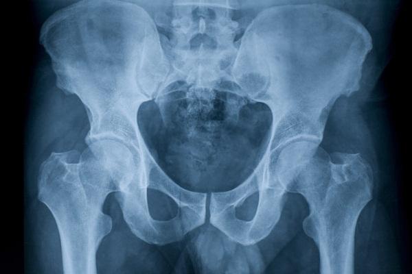 Артроз тазобедренного сустава. Симптомы и лечение, народные средства, препараты