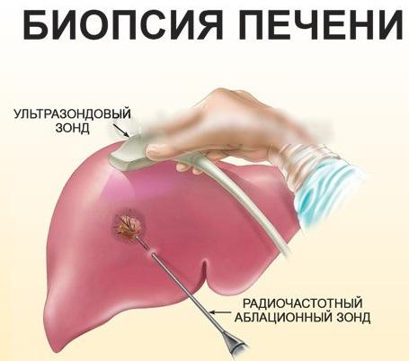 Боль в печени. Симптомы и лечение, как снять народными средствами, лекарствами