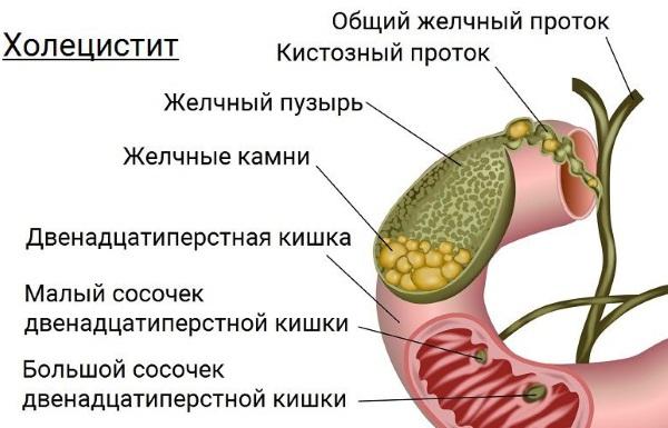 Признаки желтухи у взрослых, фото, как передается, лечение