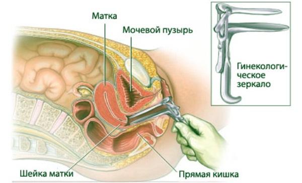 Боль внизу живота слева у женщин в паху. Причины и что делать