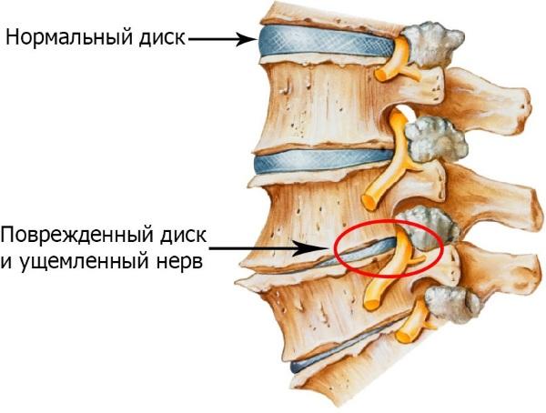 Шишка на шее сзади в области позвоночника. Как убрать, лечение, к какому врачу обратиться