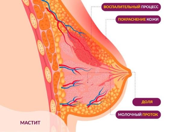 Болят грудные железы. Причины у женщин после/перед месячными, при климаксе, беременности. Лечение
