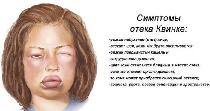 Дерматоз. Фото, симптомы и лечение, при беременности, на руках, ногах, лице, туловище. Мази, кремы, народные средства