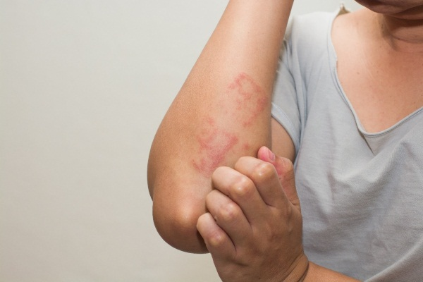Очаговый дерматит фото