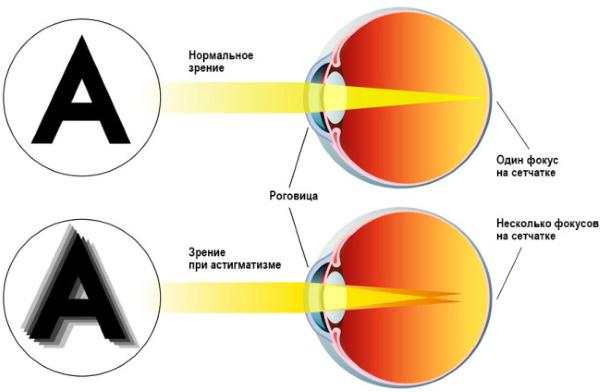 Диплопия. Причины, симптомы и лечение заболевания глаз, клинические рекомендации