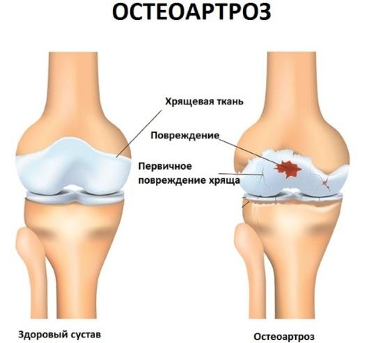 Дипроспан средство от болей суставов. Инструкция по применению взрослым, детям, аналоги