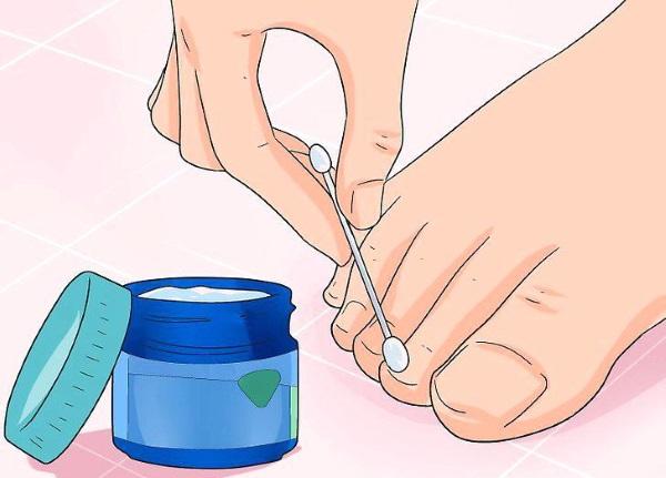 Фундизол от грибка ногтей. Инструкция по применению, цена, аналоги, отзывы