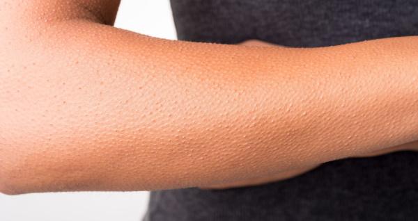 Как избавиться от гусиной кожи на теле