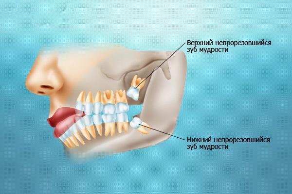 Хлоргексидин для полоскания рта, горла, десен. Инструкция, как разводить