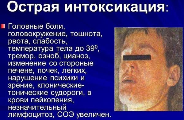 Интоксикация организма во время болезни, отравления. Симптомы у взрослых и детей, лечение