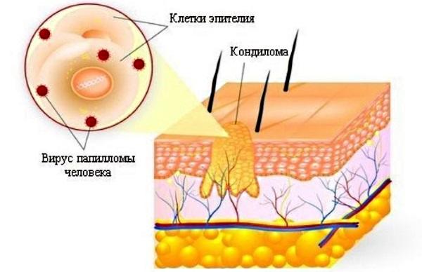 Кандилома у женщин. Фото, лечение вируса, симптомы, от чего появляются при беременности