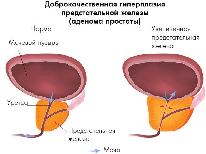 Катетеризация мочевого пузыря. Алгоритм выполнения, техника, осложнения