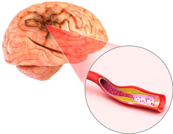 Мозжечок головного мозга человека, функции, строение, патологии в неврологии, лечение