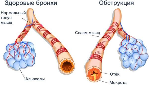Раствор Эуфиллина (Euphyllin) для электрофореза, инъекций, ингаляций. Инструкция по применению, дозировка