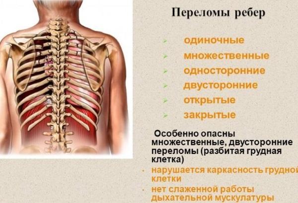 Перелом ребра. Симптомы, первая помощь, бандаж, лечение в домашних условиях, сколько заживает, осложнения
