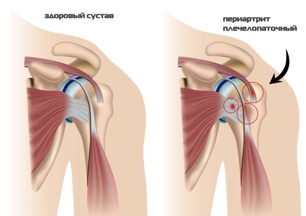 Как вылечить полиартрит плечевого сустава thumbnail