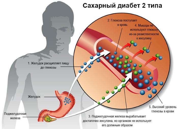 Повышенный инсулин в крови. Что это значит, если при нормальном сахаре. Лечение