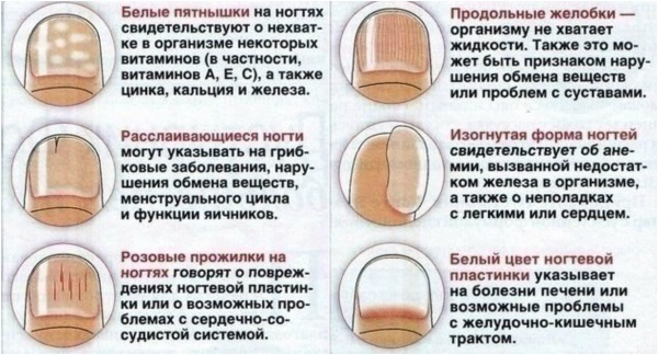 Ребристые ногти на руках у женщин. Причины и лечение, питание, уход