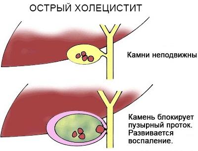 РОЭ норма в крови у женщин по возрасту. Таблица после 40 лет, оседание, что значит повышенное, причины и лечение
