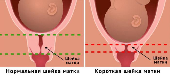 Шейка матки. Фото внутри, строение, норма размеров здоровой при беременности, перед родами, месячными