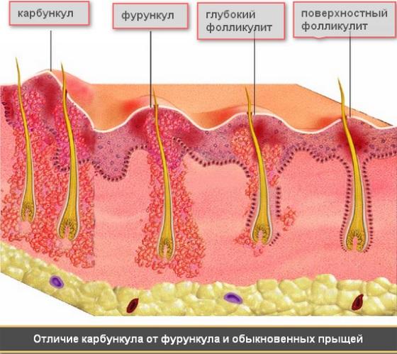 Шишка в подмышечной впадине у женщин болит. Как лечить, обследовать, к какому врачу обратиться