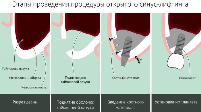 Синус-лифтинг верхней челюсти. Что это такое, как делается операция, возможные осложнения