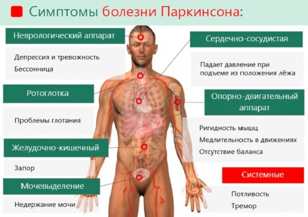 Старческое слабоумие. Симптомы и признаки у женщин, лечение деменции, препараты, уход