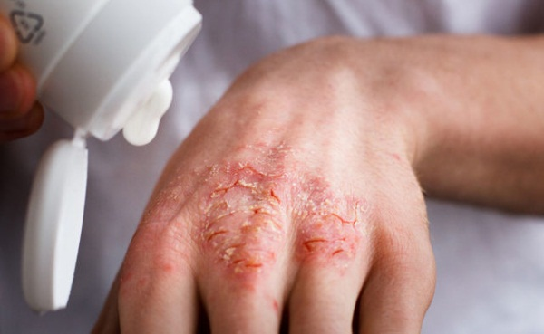 Аллергическая экзема на руках у детей и взрослых (фото): лечение и симптомы