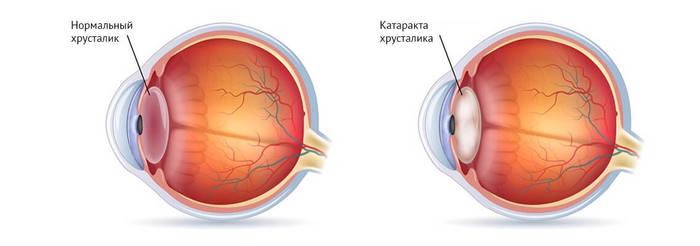 Удаление катаракты в пожилом возрасте. Последствия, послеоперационный период, противопоказания