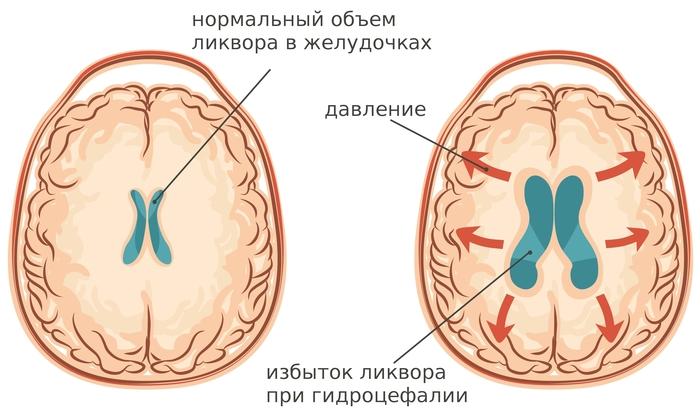 Вестибулярный аппарат. Симптомы нарушения и лечение у взрослых, детей