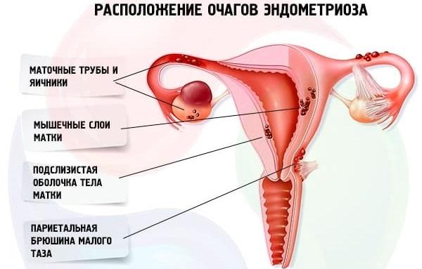 Визанна. Инструкция по применению при эндометриозе, беременности, миоме. Отзывы, побочные действия, цена