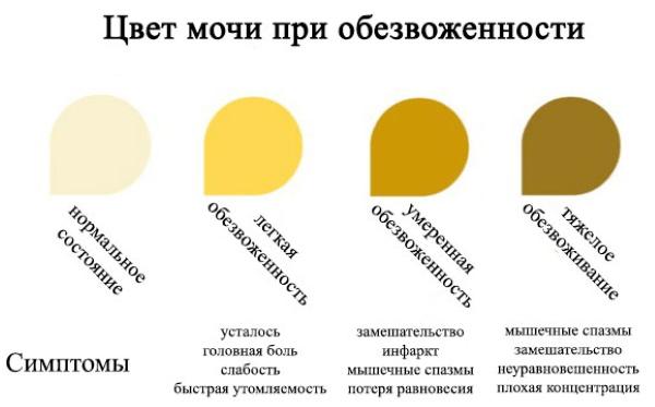 Желтая моча. Причины у женщин ярко-, темно-желтая при беременности, с запахом, белыми хлопьями. Что это может быть