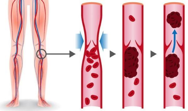АЧТВ в анализе крови. Что это за показатель, норма у женщин, мужчин, детей по возрасту, расшифровка