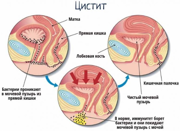 Анализ на микрофлору в гинекологии. Сколько делается, норма, расшифровка
