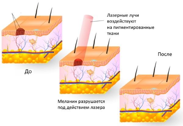Базалиома кожи лица. Лечение, что это за болезнь, фото разных стадий, народные средства, лазер, лучевая терапия