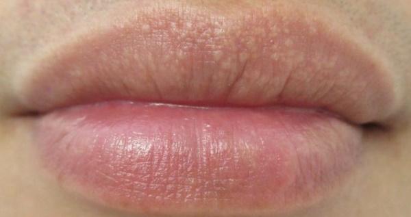 Прыщ внутри губы: почему появляется и как лечить