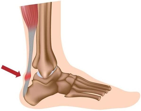 Боль в мышцах ног выше, ниже колена, сзади. Причины и лечение у женщин