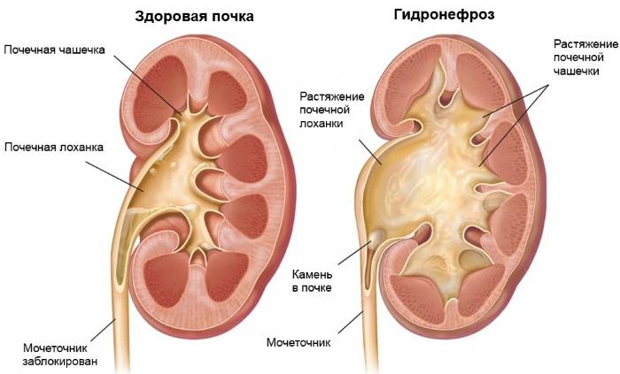 Болит правый, левый бок в районе талии со спины, сбоку, спереди у мужчин, женщин. Что делать