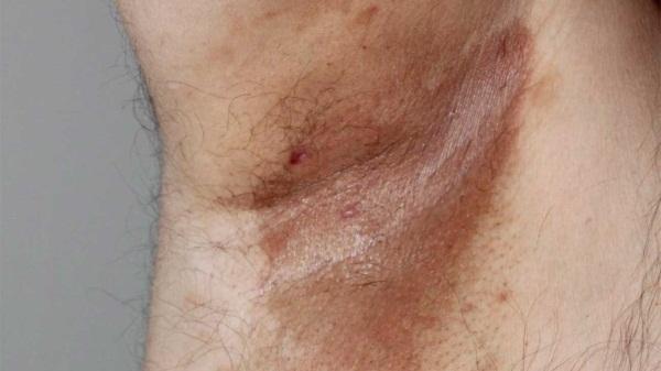 Эритразма у женщин, мужчин. Фото паховая, на ягодицах, под мышками, лечение