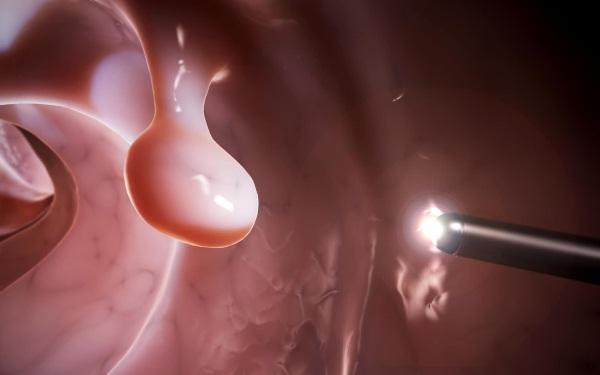 Фиброзно-железистый полип эндометрия. Что это такое, лечение после удаления