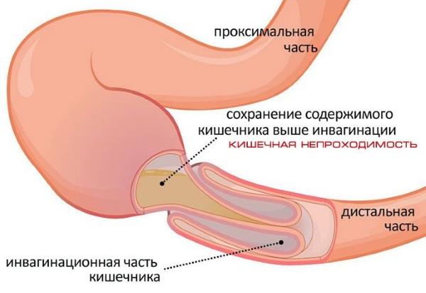 Гематокрит повышен у взрослого в крови. Причины у мужчины, женщины