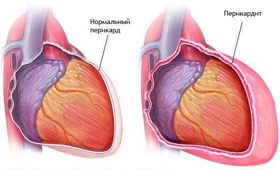 Гликозиды сердечные препараты. Весь перечень, классификация, названия, цены