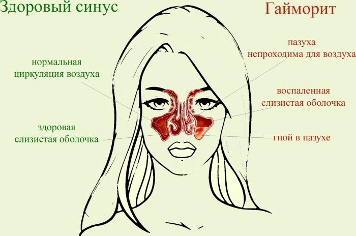 Как правильно промывать нос при гайморите, насморке, аденоидах, ОРВИ ребенку и взрослому