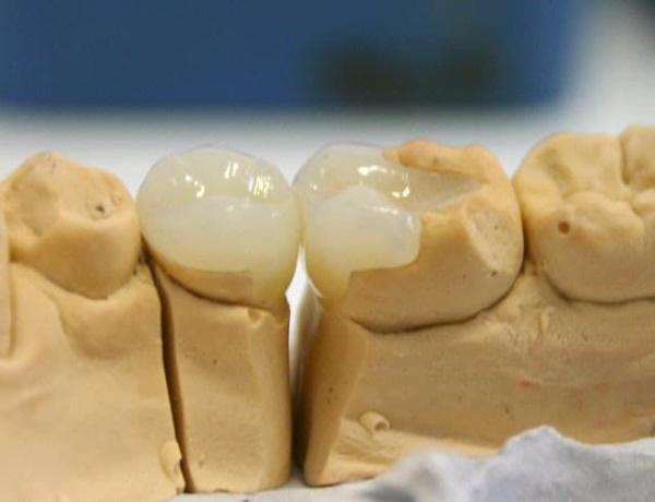 Керамические вкладки на зубы. Что это такое, фото, цена, отзывы врачей