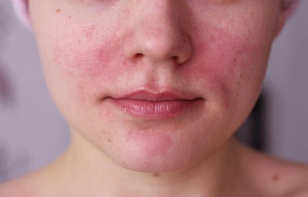 Почему часто краснеют щеки