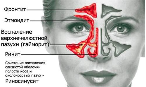 КТ носа и околоносовых пазух. Что показывает, как делают процедуру, цена
